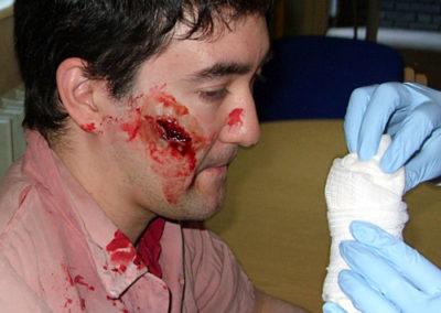 Facial-Injury